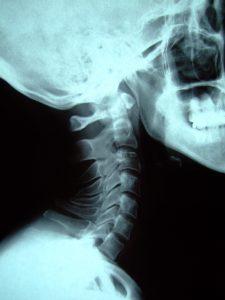 %e9%a0%9a%e6%a4%8e-11-18-32-neck_cervical_spin2013-12-13